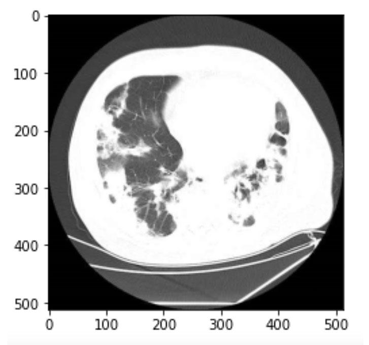 肺のレントゲン画像1